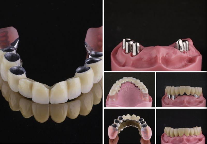 Telescopic dentures u harmony dental lab