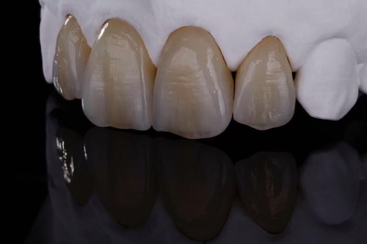 Emax Ceramic Crown Ips Emax Dental Crowns Riverside Dental