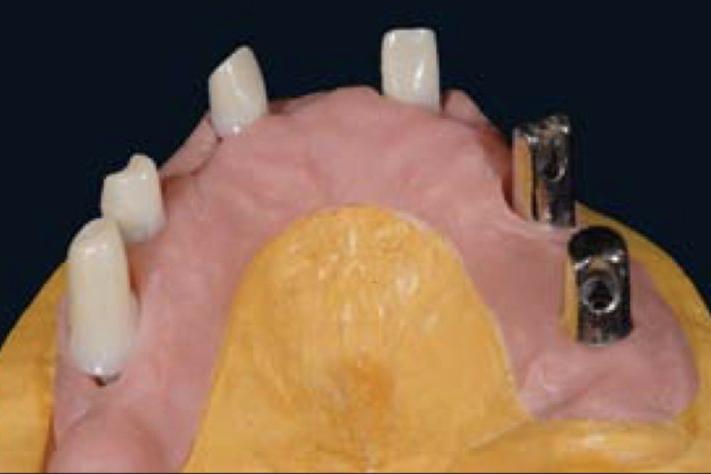 Telescopic dentures harmony dental lab