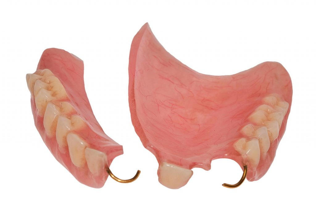 Broken Dentures Repair